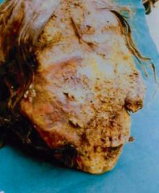 "Mummified face (Peru): teeth and skull exams and X-Rays reflect that of a 6-year-old girl with ""severe facial defect ... erosion and lesions of the nose, lips, mandible, cheeks, and gums."" Giemsa stains show macrophages with leishmania. (Gerszten et al, 2012: 253)."