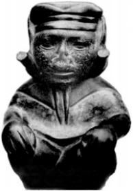 'Huaco mochica', a pre-Columbian ceramic showing mutilation of the upper lip suggestive of mucosal leishmaniasis (Tuon et al, 2008: 162)