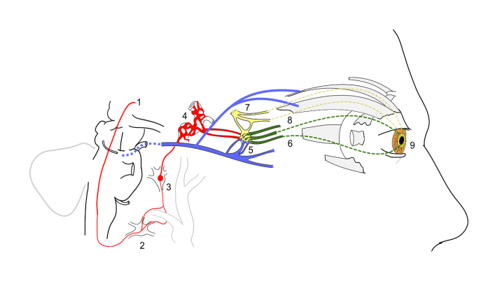 sympathetic and parasympathetic innervation of the pupil and sites of lesion in a Horner's syndrome (sympathetic lesion) [Image: wikimedia]